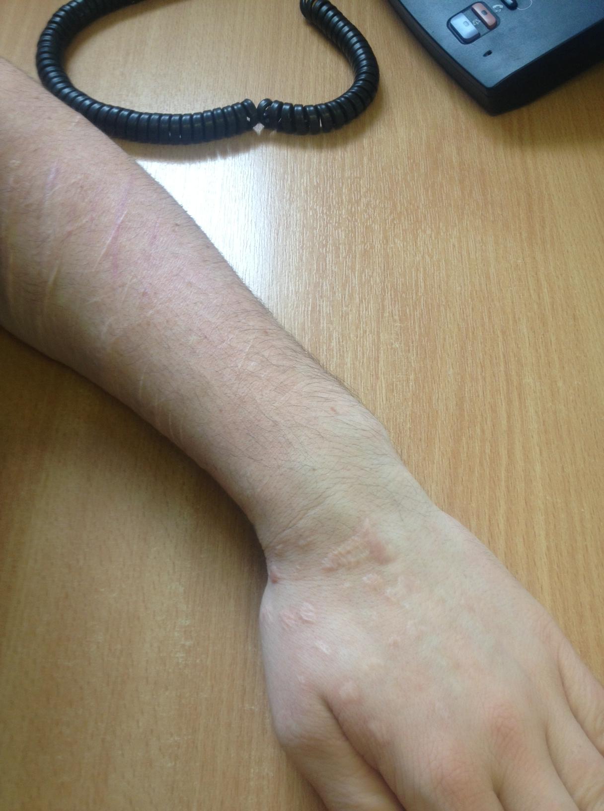 Self Injury Cutting Scars