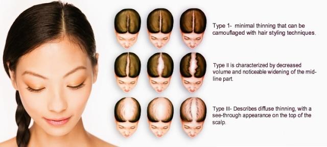 trichotillomania-hair-styles-alluring-alopecia-trichotillomania-male-and-female-hair-loss